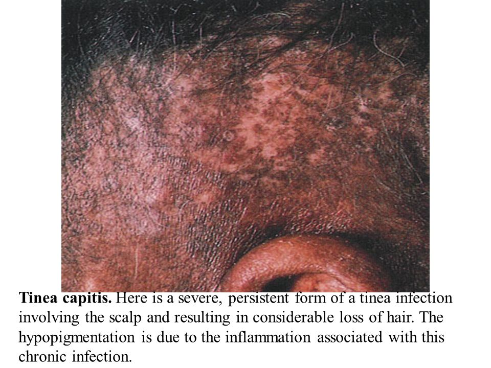 Tinea capitis. Here is a severe, persistent form of a tinea infection involving the scalp and resulting in considerable loss of hair. The hypopigmentation is due to the inflammation associated with this chronic infection.
