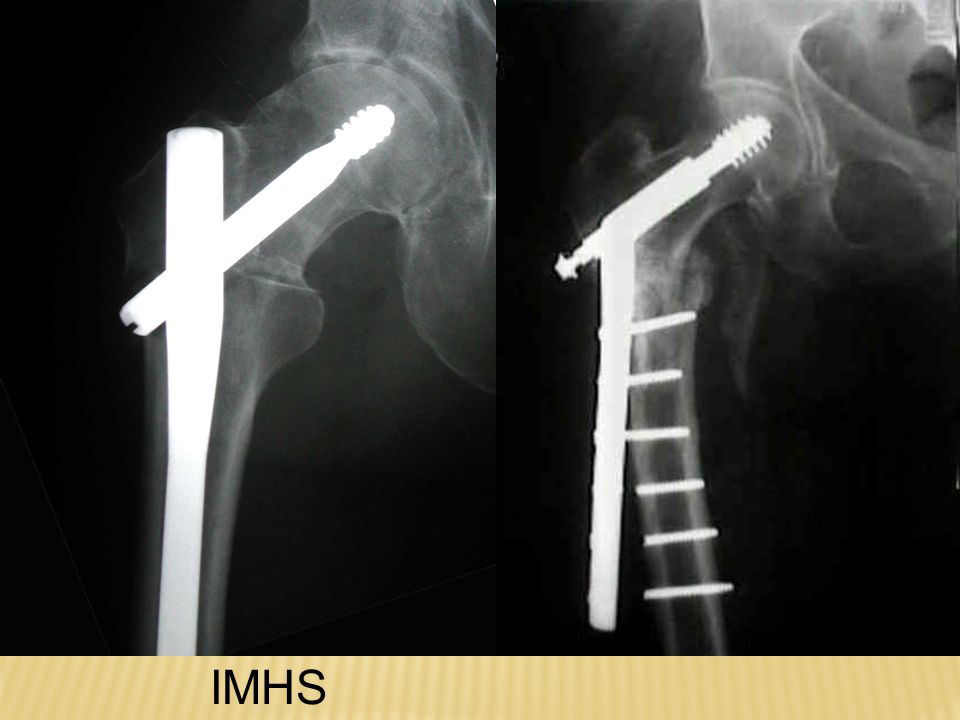 IMHS DHS
