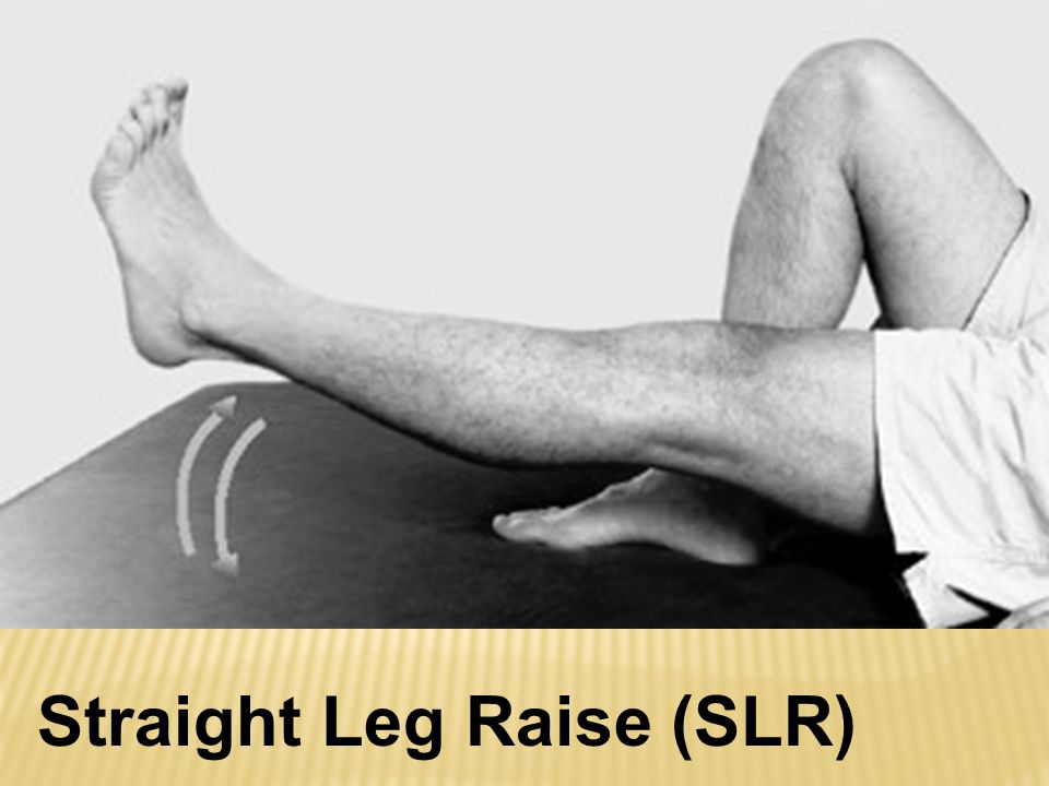 Straight Leg Raise (SLR)