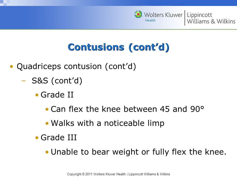 Contusions (cont'd) Quadriceps contusion (cont'd) S&S (cont'd)
