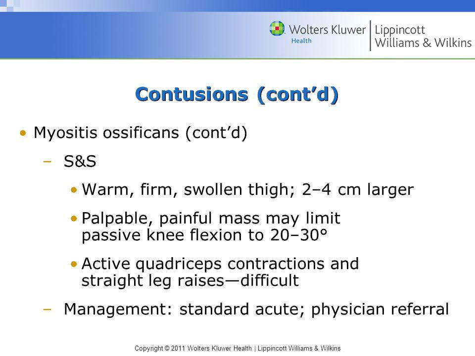 Contusions (cont'd) Myositis ossificans (cont'd) S&S
