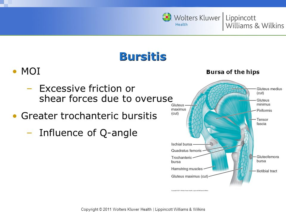 Bursitis MOI Excessive friction or shear forces due to overuse