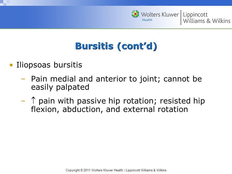 Bursitis (cont'd) Iliopsoas bursitis