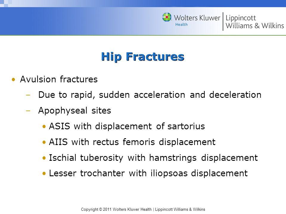 Hip Fractures Avulsion fractures