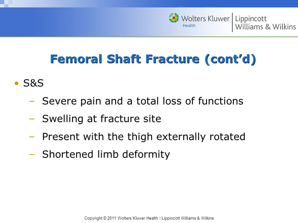 Femoral Shaft Fracture (cont'd)
