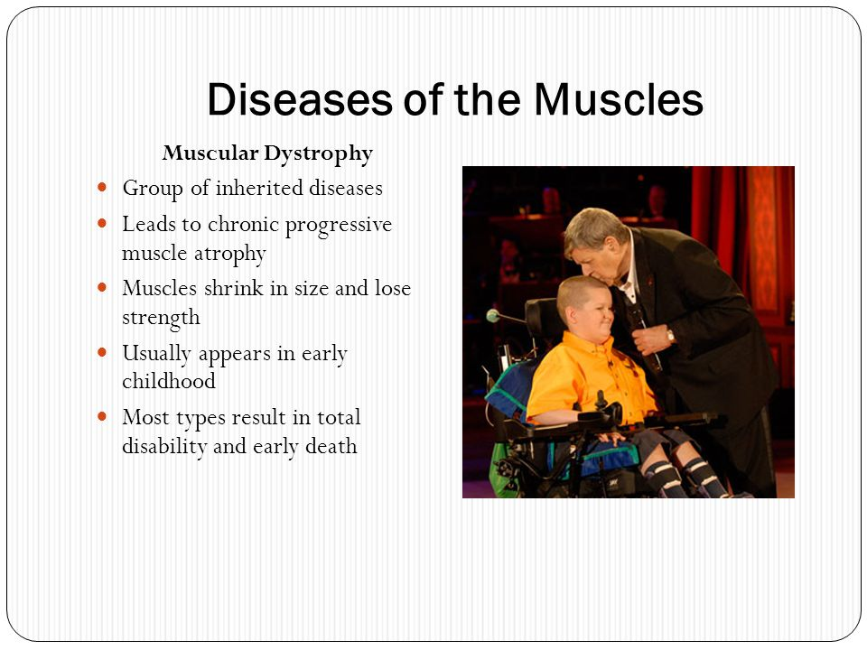 Diseases of the Muscles