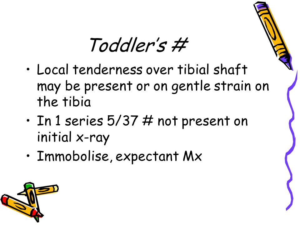 Toddler's # Local tenderness over tibial shaft may be present or on gentle strain on the tibia. In 1 series 5/37 # not present on initial x-ray.