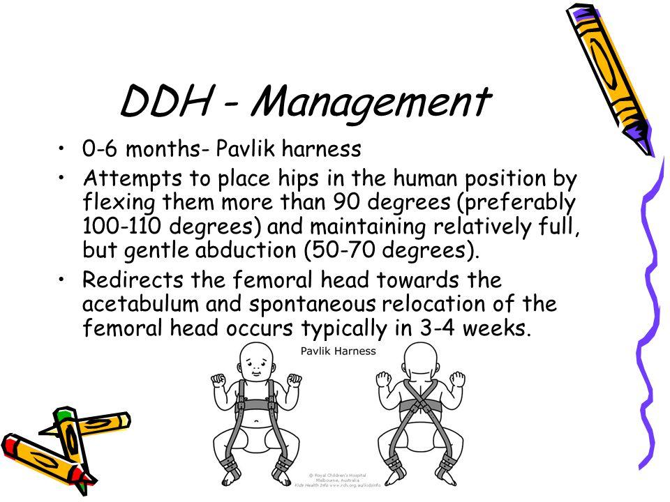 DDH - Management 0-6 months- Pavlik harness