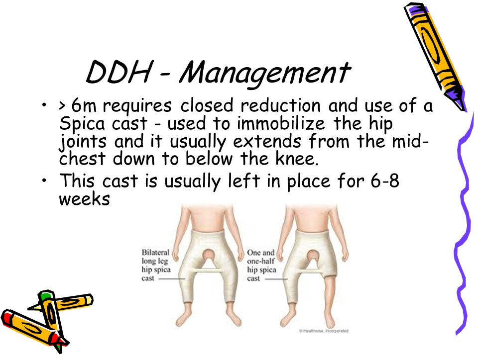 DDH - Management