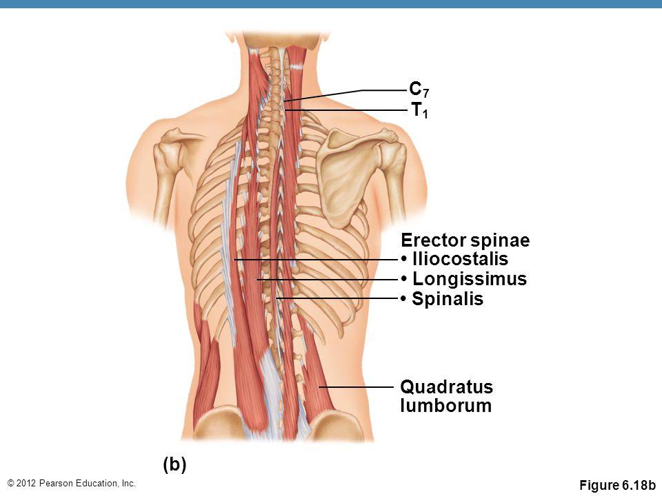 C7 T1 Erector spinae • Iliocostalis • Longissimus • Spinalis