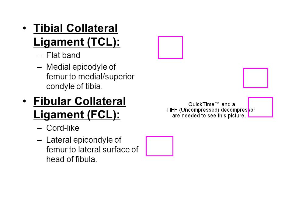Tibial Collateral Ligament (TCL):