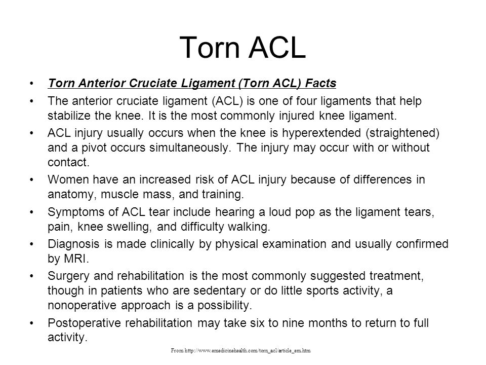 Torn ACL Torn Anterior Cruciate Ligament (Torn ACL) Facts