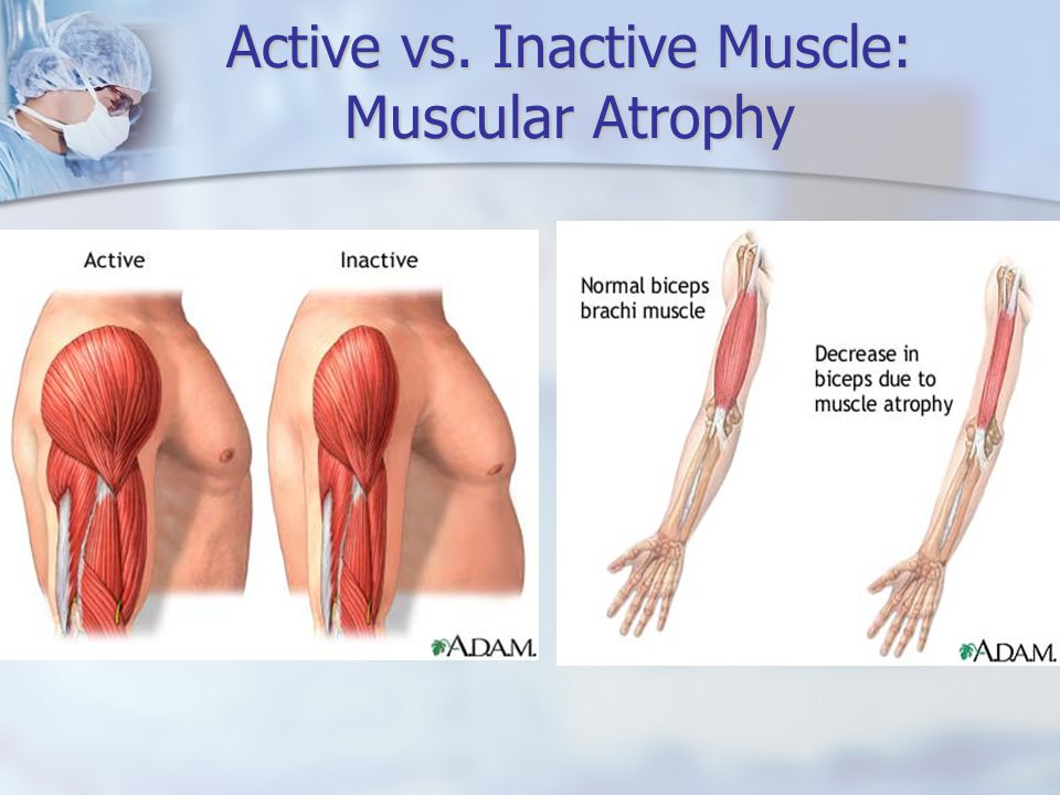 Active vs. Inactive Muscle: Muscular Atrophy