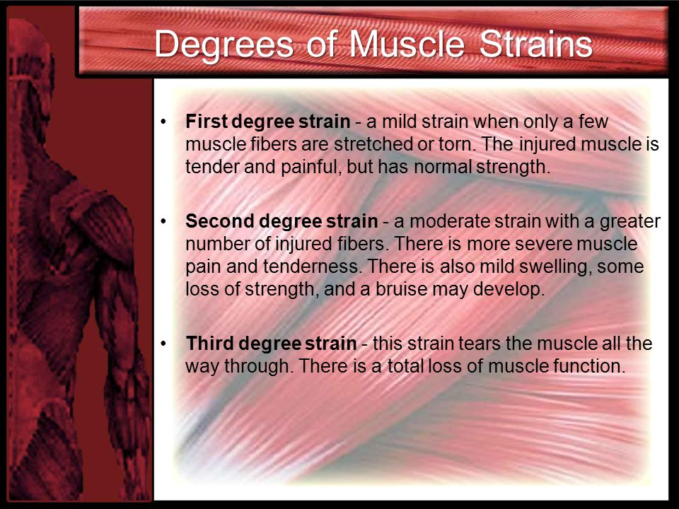 Degrees of Muscle Strains