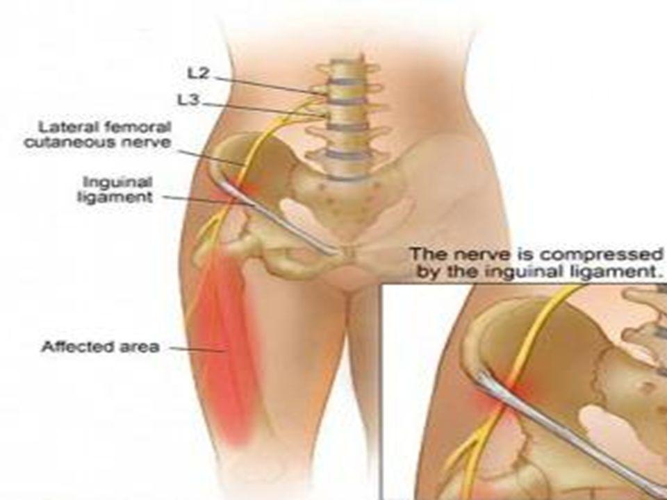 2. ..femoral nerve (L2-L4) Largest branch of the lumbar plexus.