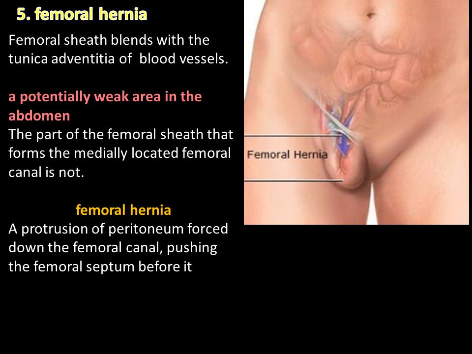 5. femoral hernia Femoral sheath blends with the tunica adventitia of blood vessels. a potentially weak area in the abdomen.