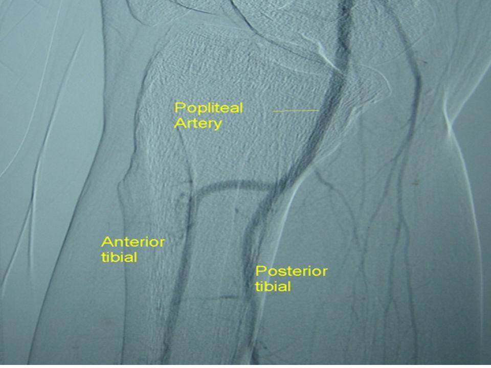 5. Popliteal artery/vein