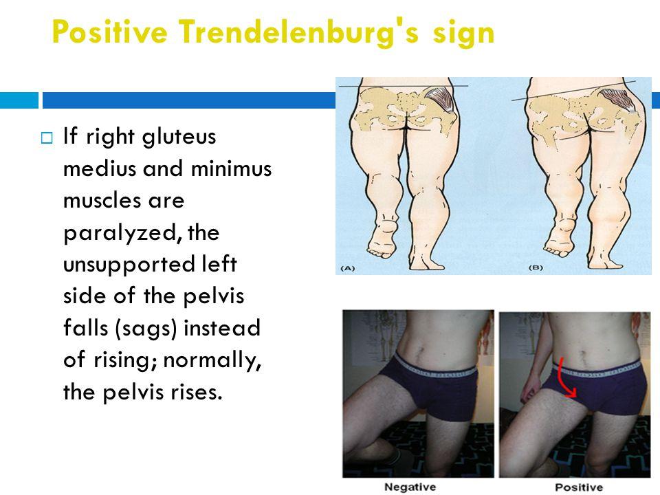 Positive Trendelenburg s sign