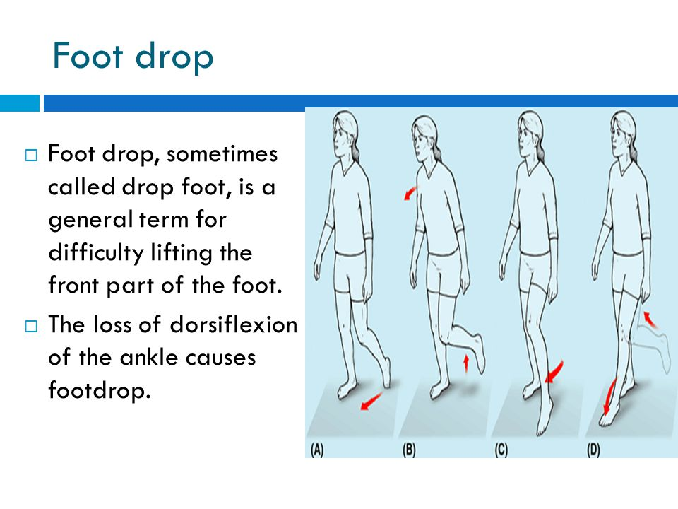 Foot drop Foot drop, sometimes called drop foot, is a general term for difficulty lifting the front part of the foot.