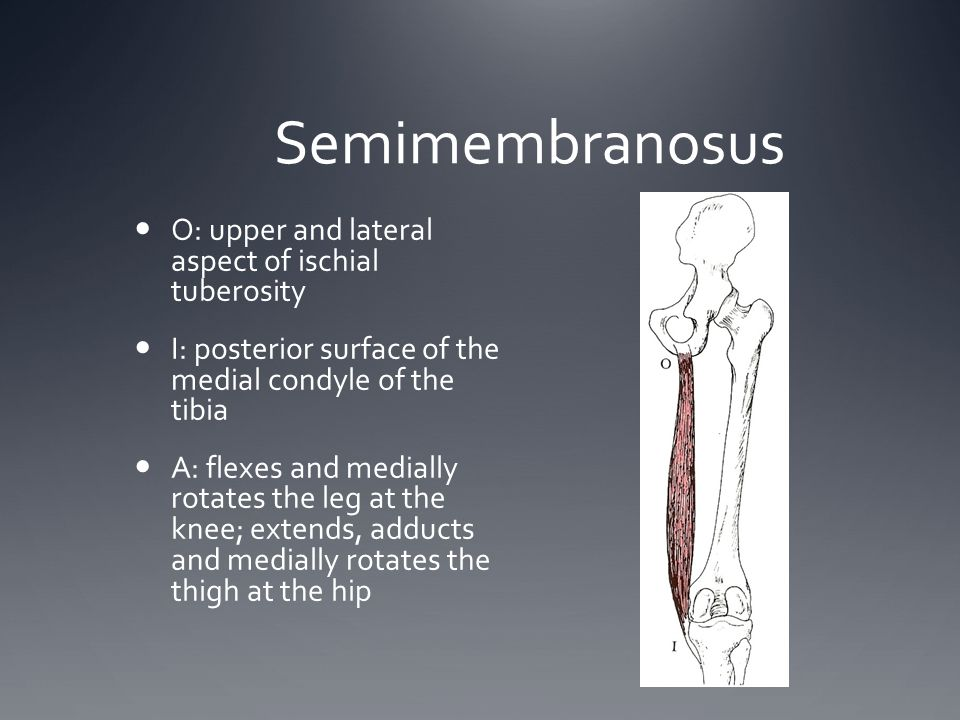 Semimembranosus O: upper and lateral aspect of ischial tuberosity