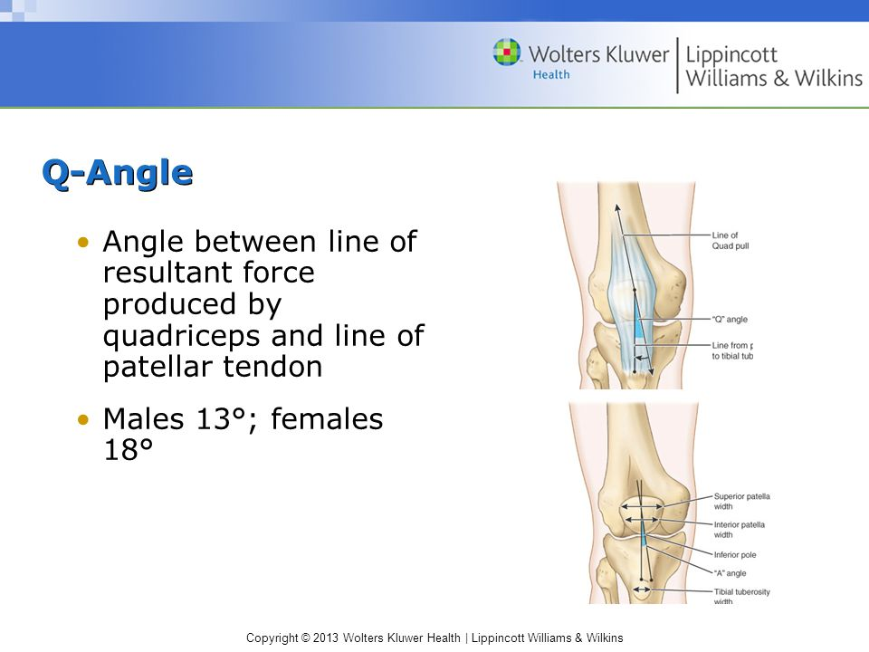 Q-Angle Angle between line of resultant force produced by quadriceps and line of patellar tendon.