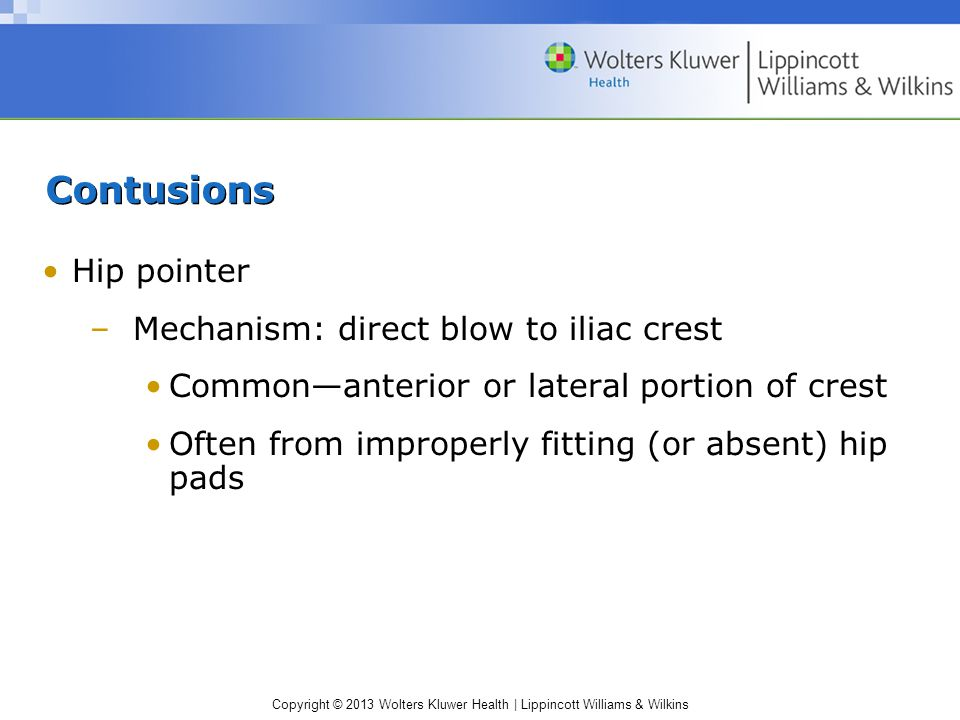 Contusions Hip pointer Mechanism: direct blow to iliac crest