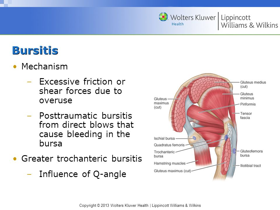 Bursitis Mechanism Excessive friction or shear forces due to overuse