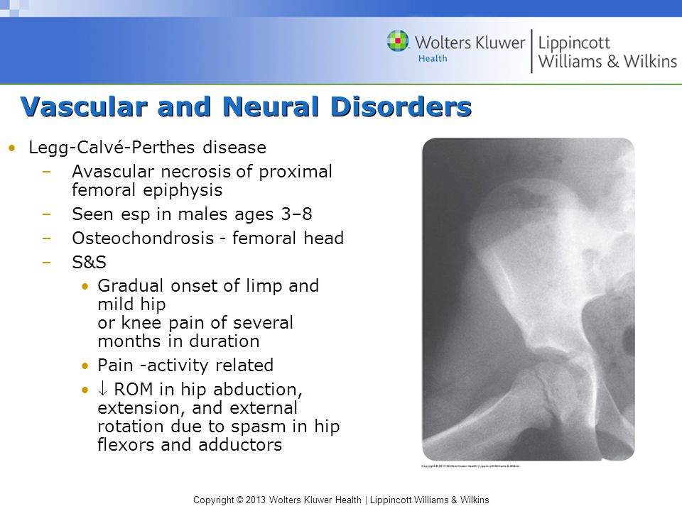 Vascular and Neural Disorders