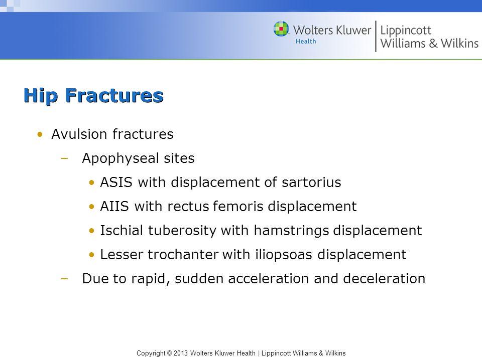 Hip Fractures Avulsion fractures Apophyseal sites
