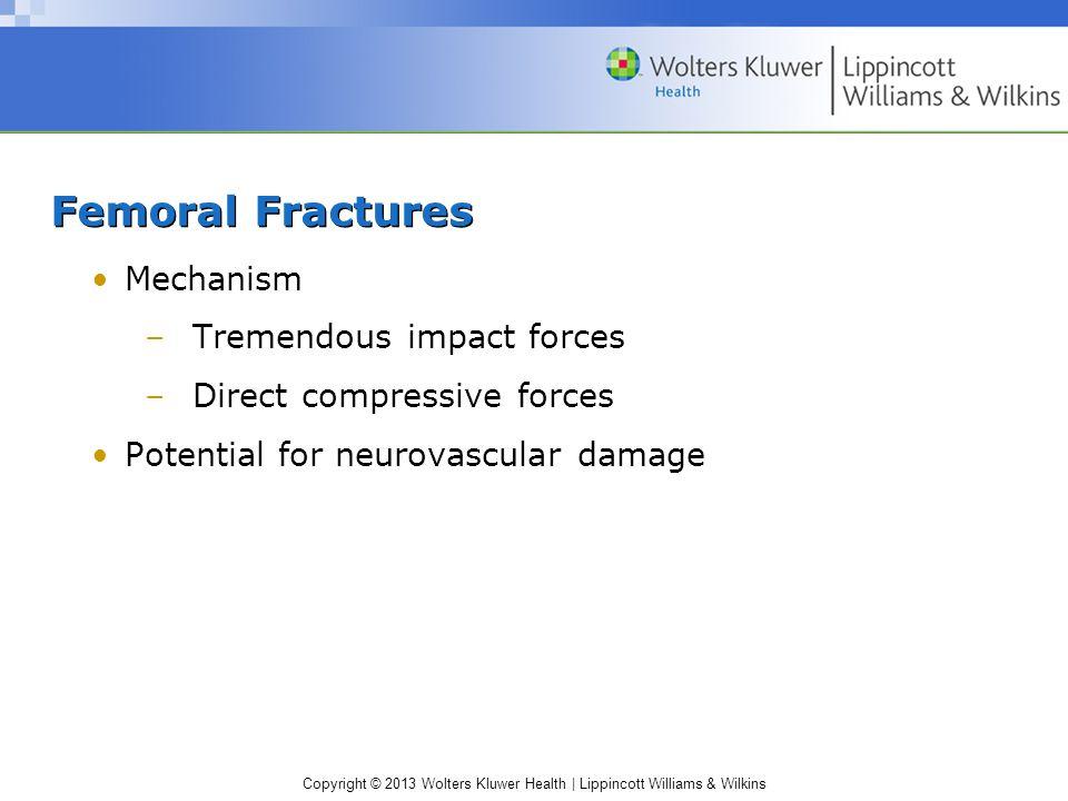 Femoral Fractures Mechanism Tremendous impact forces