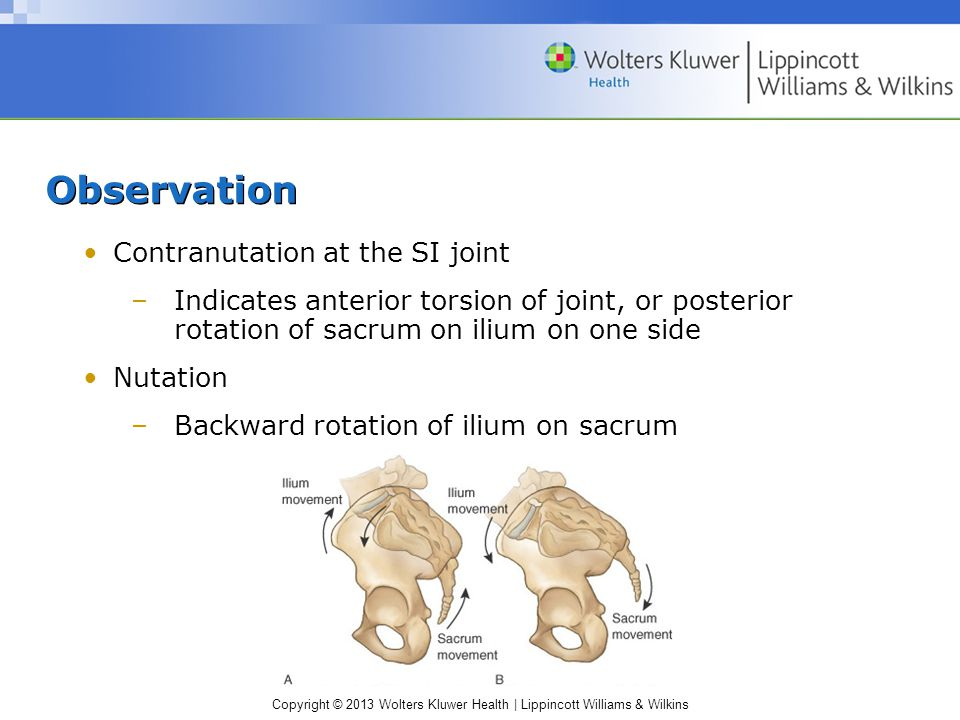 Observation Contranutation at the SI joint
