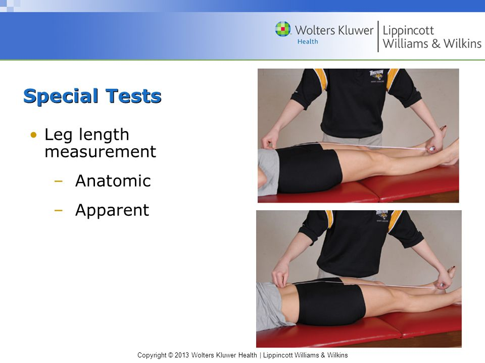 Special Tests Leg length measurement Anatomic Apparent