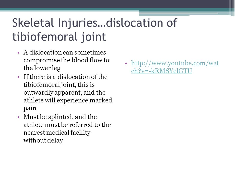 Skeletal Injuries…dislocation of tibiofemoral joint