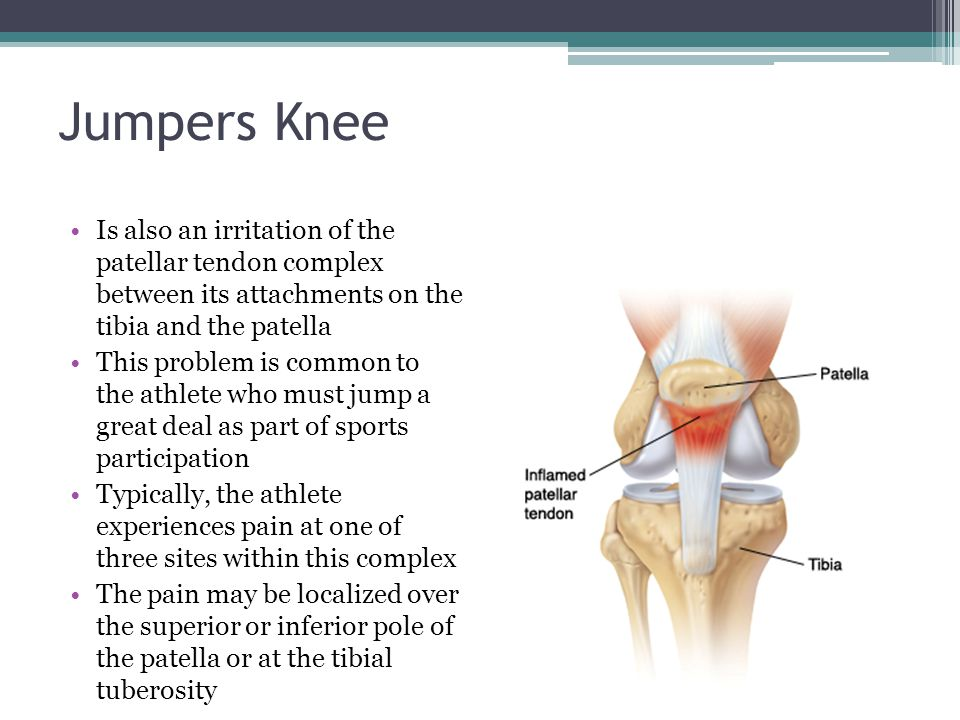 Jumpers Knee Is also an irritation of the patellar tendon complex between its attachments on the tibia and the patella.
