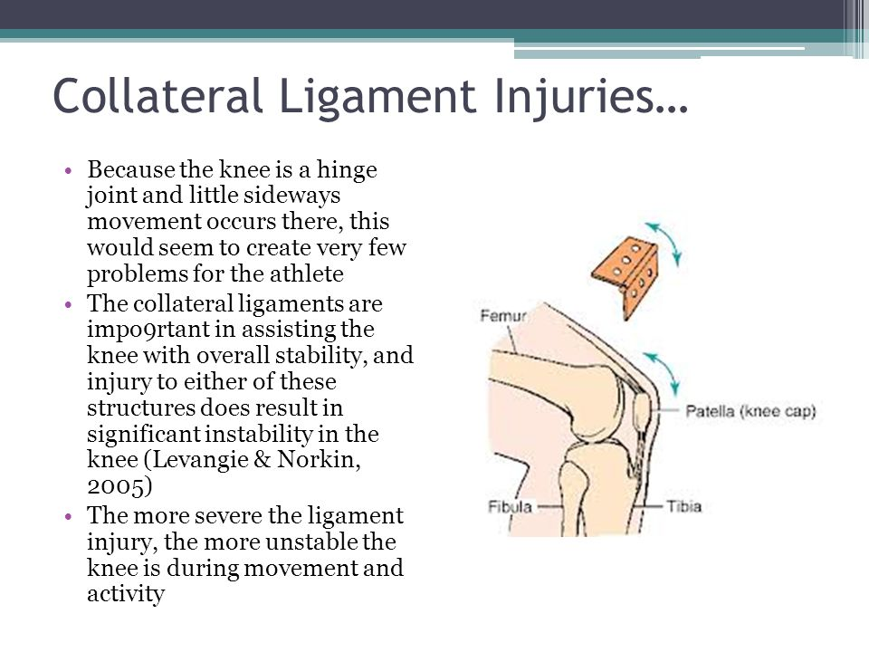 Collateral Ligament Injuries…