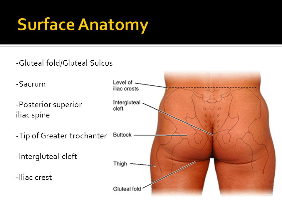 Surface Anatomy -Gluteal fold/Gluteal Sulcus -Sacrum -Posterior superior iliac spine -Tip of Greater trochanter -Intergluteal cleft -Iliac crest