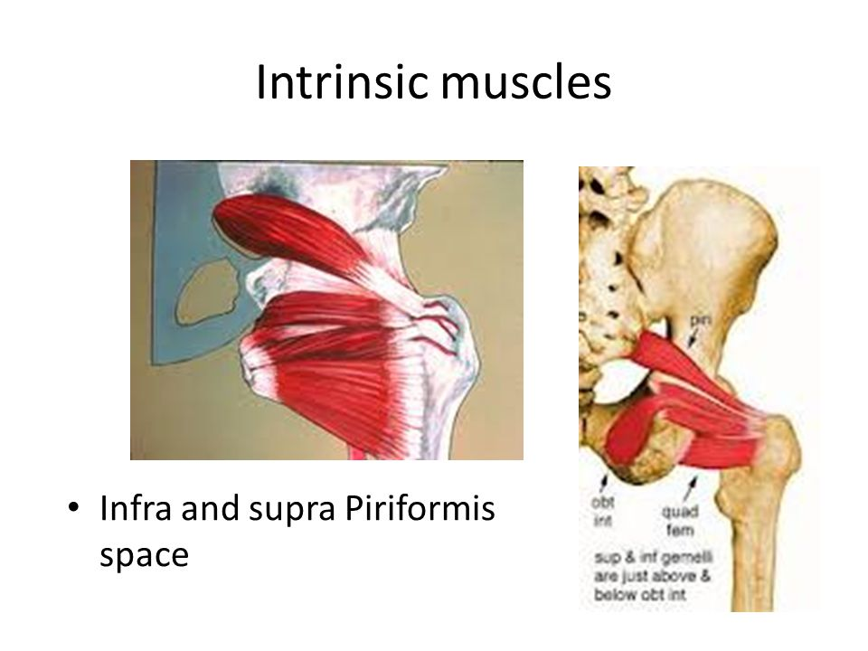 Intrinsic muscles Infra and supra Piriformis space
