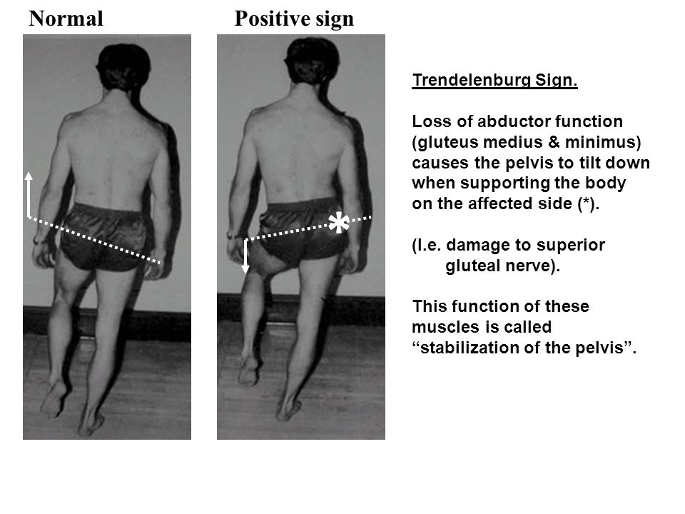 * Normal Positive sign Trendelenburg Sign. Loss of abductor function