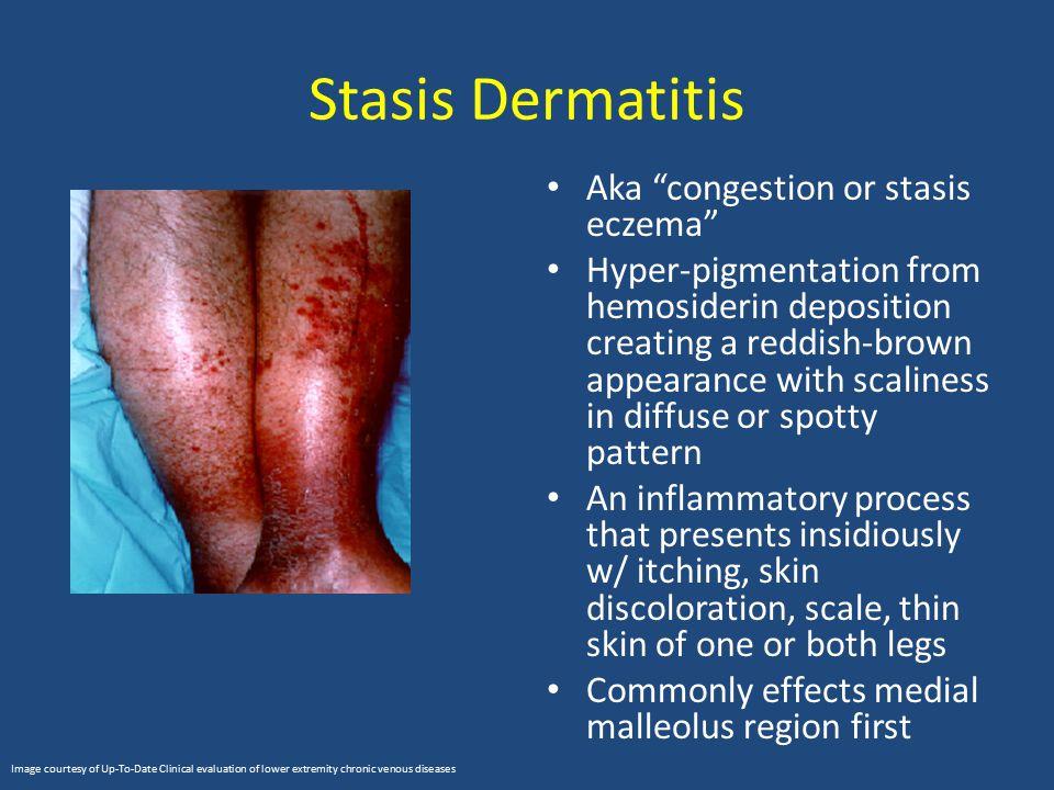 Stasis Dermatitis Aka congestion or stasis eczema