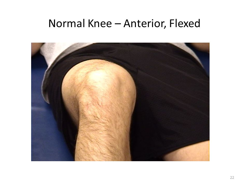 Normal Knee – Anterior, Flexed