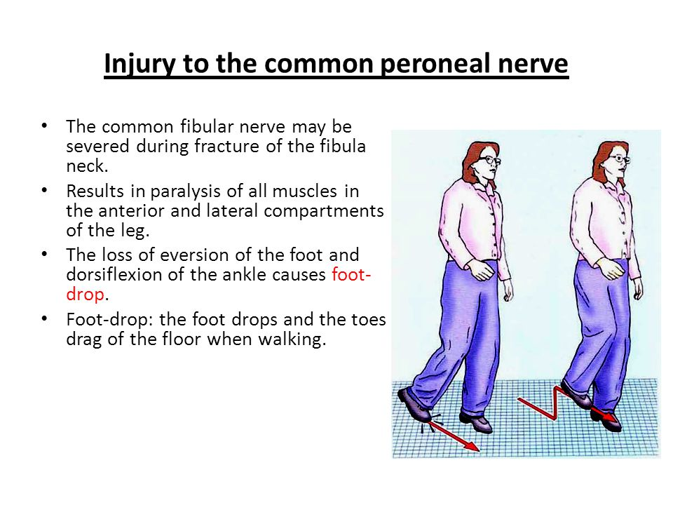 Injury to the common peroneal nerve