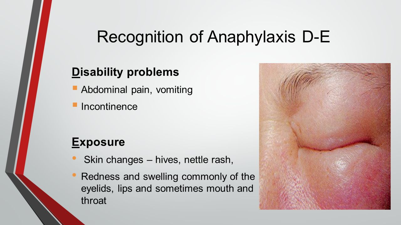 Recognition of Anaphylaxis D-E