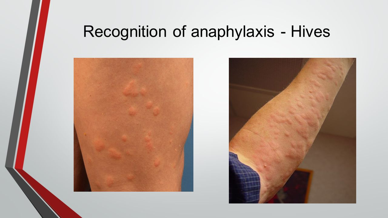 Recognition of anaphylaxis - Hives