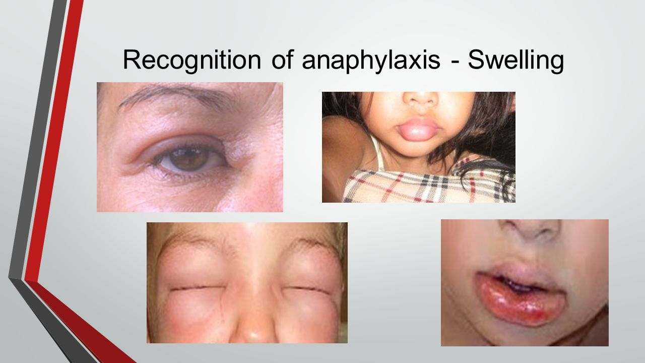 Recognition of anaphylaxis - Swelling