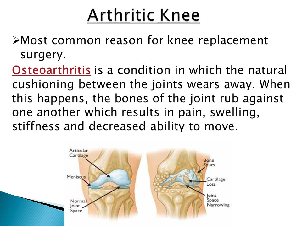 Arthritic Knee Most common reason for knee replacement surgery.