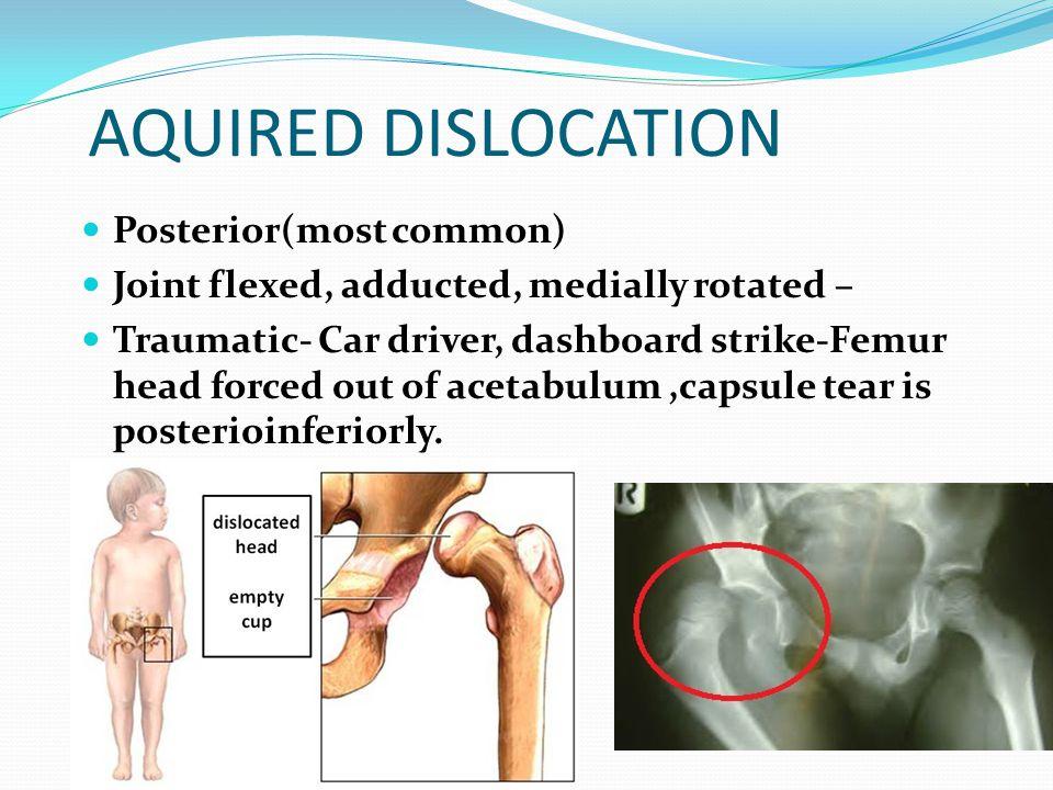AQUIRED DISLOCATION Posterior(most common)