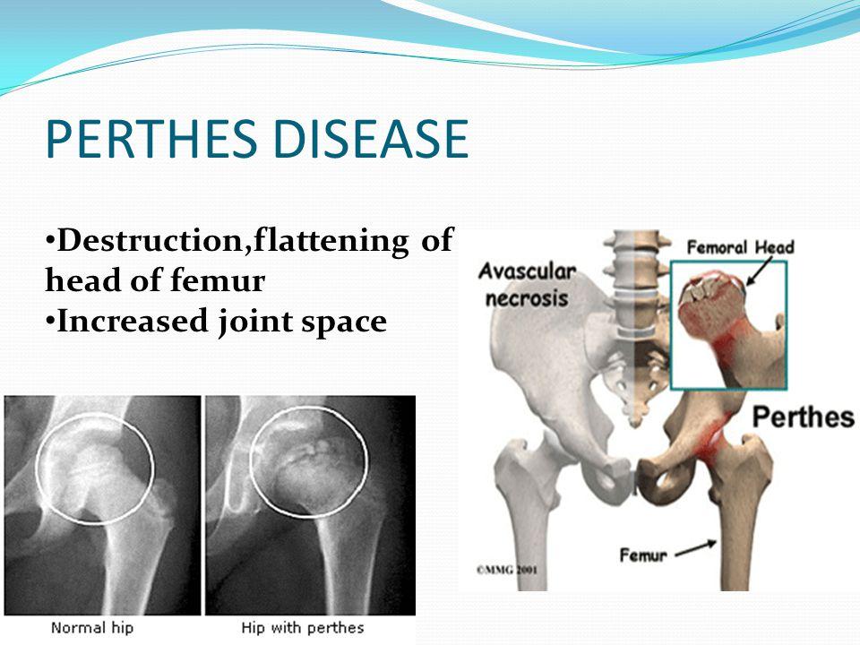 PERTHES DISEASE Destruction,flattening of head of femur