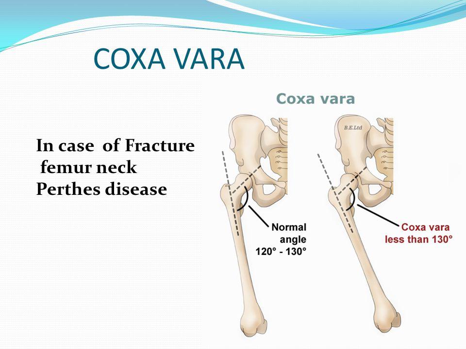 COXA VARA In case of Fracture femur neck Perthes disease
