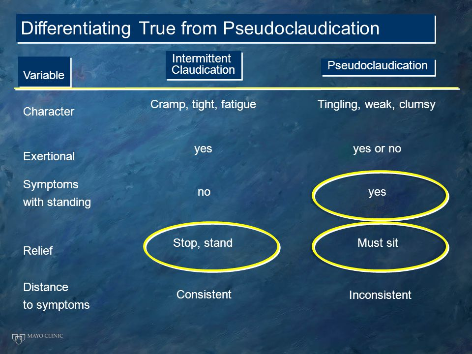 Differentiating True from Pseudoclaudication