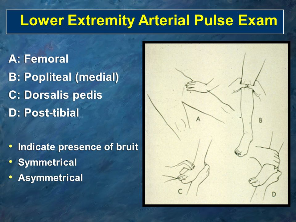 Lower Extremity Arterial Pulse Exam